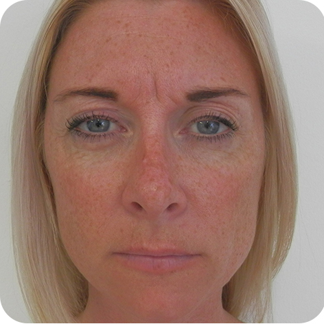 Botox Injection Kent - Botox Anti Ageing Injections