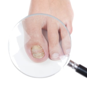 Fungal Nail treatment Tunbridge Wells Kent