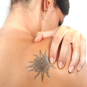 Tattoo Removal Tunbridge Wells Kent
