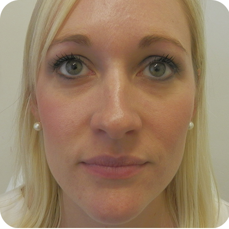 Dermal Fillers Treatment Kent, Clinics of Dermal Filler at