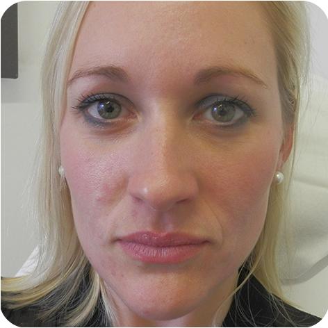 Dermal Fillers Treatment Kent Clinics Of Dermal Filler At