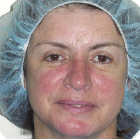 Rosacea Laser Treatment Kent Treatment For Rosacea On Face