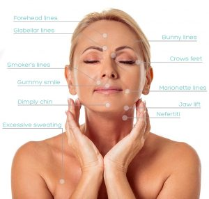 botox-page-treatment-areas