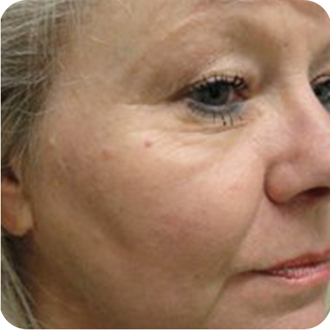Laser Mole Removal Kent - Laser Surgery for Mole Removal Tunbridge Wells