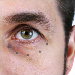 Tear Trough Dermal Fillers Kent, Under Eye Tear Trough