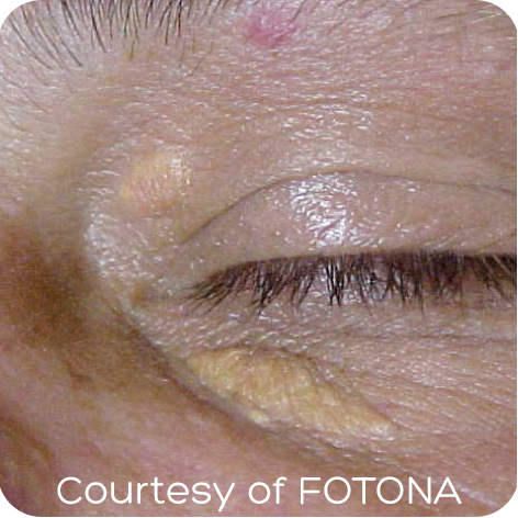Xanthelasma Removal Kent Laser Treatment For Xanthelasma