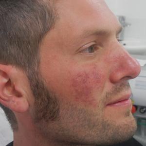 Birthmarks Treatment Kent Quickly Birthmark Removal