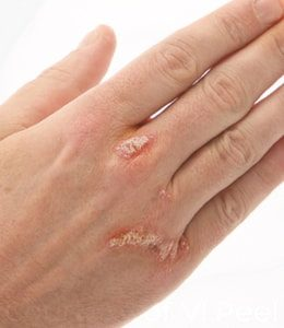 PSORIASIS hand treatment Tunbridge Wells Kent