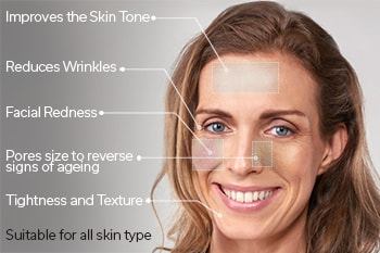 T3 collagen remodelling Tunbridge Wells Kent