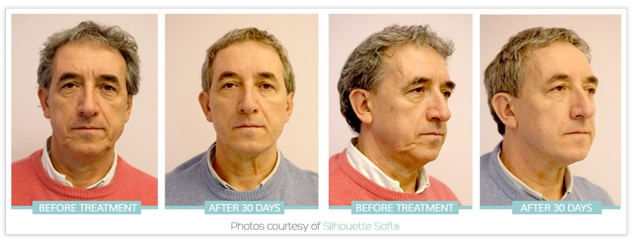 before-after-man-one-stitch-facelift