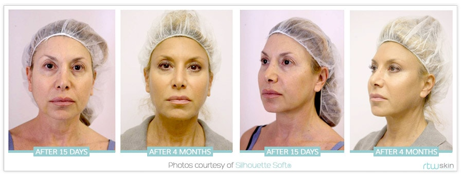 before-after-women-one-stitch-facelift