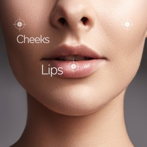 common areas for dermal filler correction small