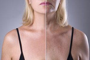 pigmentation treatment Tunbridge Wells Kent