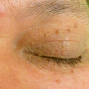 skin tags on eye tunbridge wells Kent