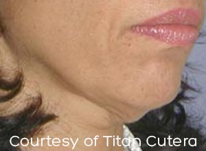Skin Tightening Treatment For Face Kent Facelift Without