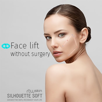 face lift without surgery one stitch silhouette soft Tunbridge Wells Kent