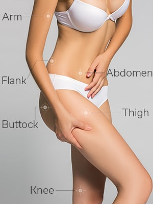 velashape areas Tunbridge Wells Kent