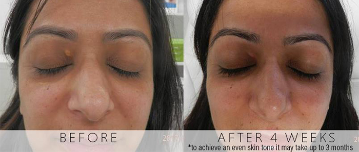 Laser removal of xanthelasma without scars | rtwskin aesthetics clinic