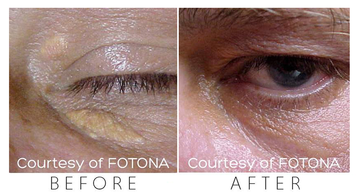 Effective treatments for xanthelasma deposits around the eyes