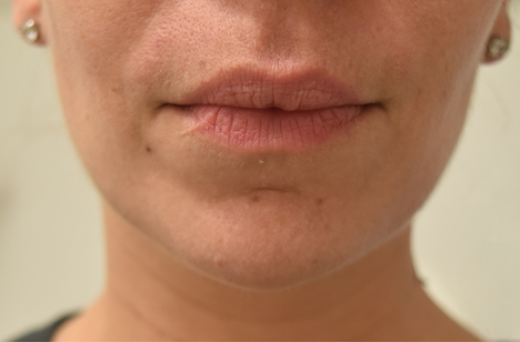 Lip Filler Injections Kent, Cost Juvederm Lip Injection
