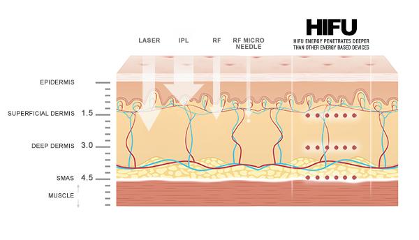 HIFU | rtwskin aesthetics clinic