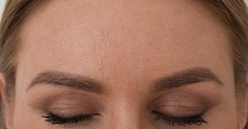 Baby Botox Kent - Anti-Ageing treatments at rtwskin