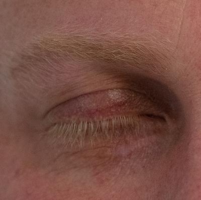 Xanthelasma Removal Kent, Laser Treatment for Xanthelasma