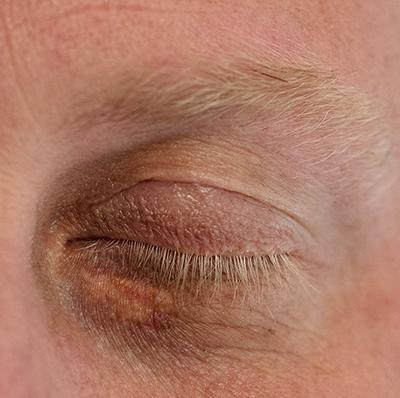 Xanthelasma Removal Kent, Laser Treatment for Xanthelasma Tunbridge